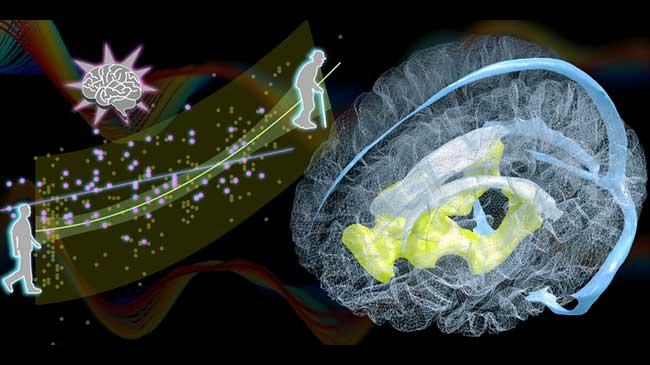 血液排出のずれと脳室の拡大