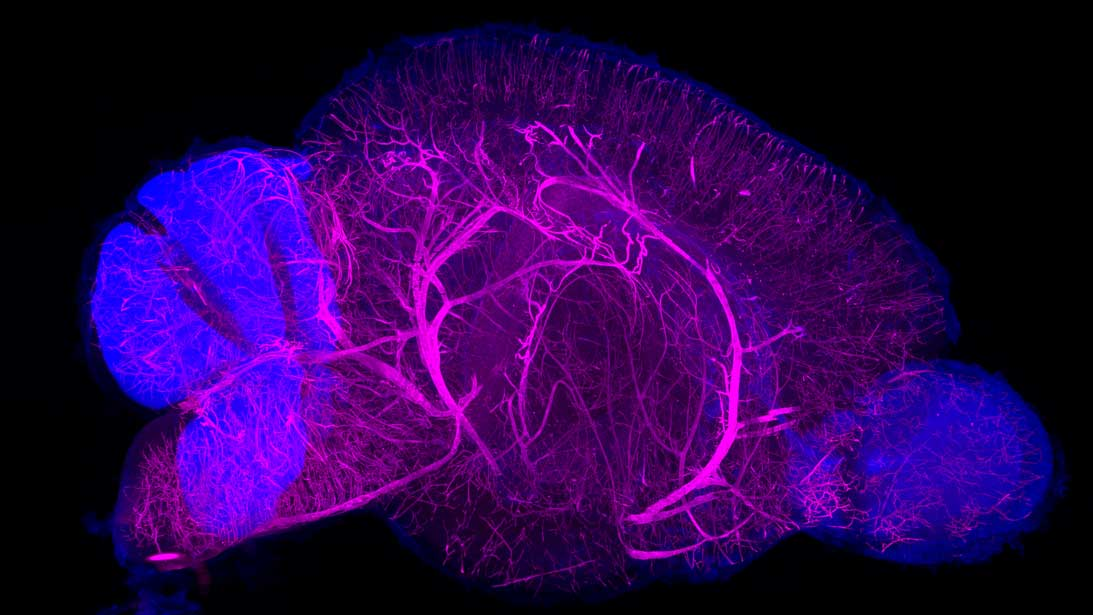Brain clearing & staining