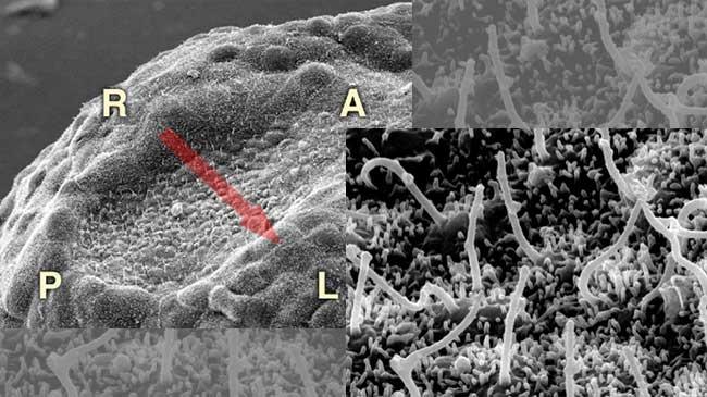 初期胚ノードと繊毛の電子顕微鏡写真
